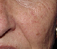Brown spots before laser dermatology treatment - San Diego Dermatology and Laser Surgery