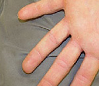 Wart on finger  after treatment - San Diego Dermatology and Laser Surgery