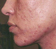 Acne and acne scars before treatment - San Diego Dermatology and Laser Surgery