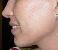Acne and acne scars after treatment - San Diego Dermatology and Laser Surgery