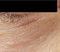 Smoothbeam Laser San Diego Dermatology And Laser Surgery