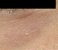 Syringomas under eye after treatment - San Diego Dermatology and Laser Surgery