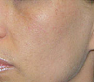 acne after treatment - San Diego Dermatology and Laser Surgery