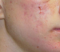 acne before treatment - San Diego Dermatology and Laser Surgery