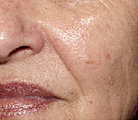Brown spots after laser dermatology treatment - San Diego Dermatology and Laser Surgery