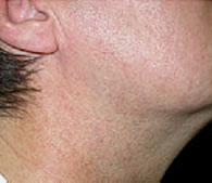 Redness on neck  after treatment - San Diego Dermatology and Laser Surgery