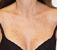 brown spots before treatment - San Diego Dermatology and Laser Surgery