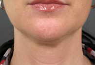 After Ultherapy skin tightening - San Diego Dermatology and Laser Surgery