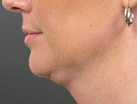 Before Ultherapy skin tightening - San Diego Dermatology and Laser Surgery