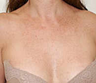 brown spots after treatment - San Diego Dermatology and Laser Surgery