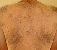 Soprano XL Hair Removal Laser before treatment - San Diego Dermatology and Laser Surgery