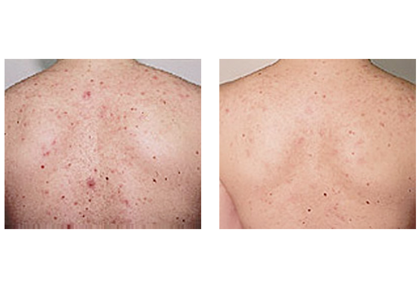 Laser treatment for acne scars on back