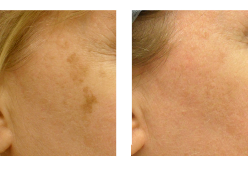 9 Tips For Age Spot Removal And Prevention