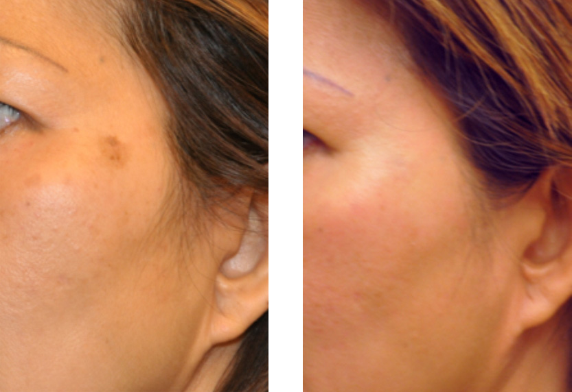 for facial brown spots treatment Laser