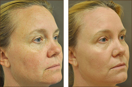 Fractional Co2 Laser Skin Resurfacing Wrinkles Sun