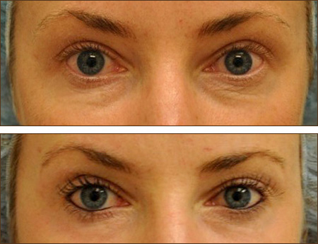 Fractional Co2 Laser Skin Resurfacing Wrinkles Sun