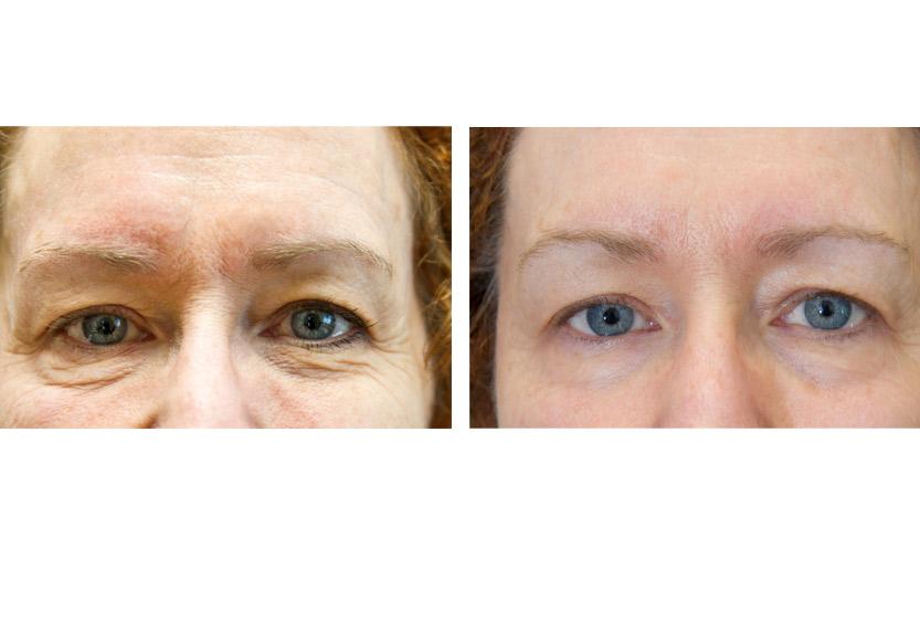 Exilis Elite - Non-surgical skin tightening - San Diego Dermatology ...