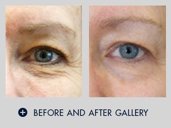 Exilis Elite - Non-surgical skin tightening - San Diego Dermatology