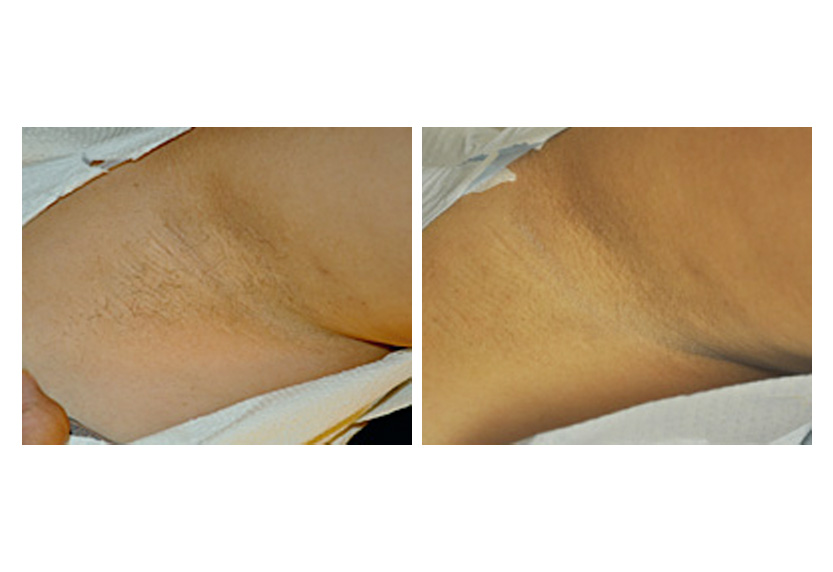 Darker Skin In Pubic Genital Rectum Areas And Between