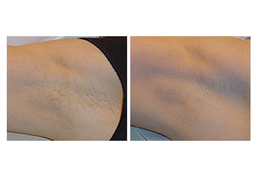 Laser Hair Removal In San Diego Ca Treatments Lasers Side Effects