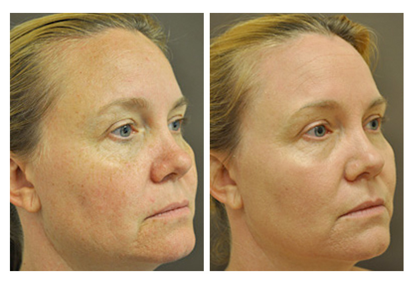 Fractional CO2 Laser Skin Resurfacing - Wrinkles, Sun Damage