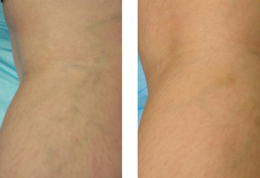 mild varicose veins
